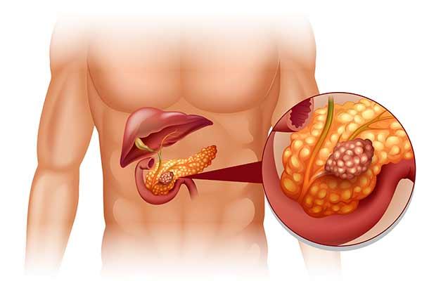 kræft i bugspytkirtlen stadie 4 levetid
